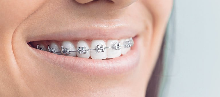 Teeth with Dental Braces