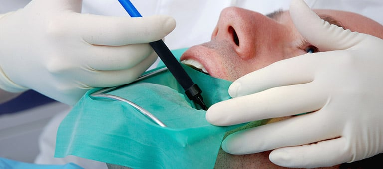 Dentist Performing Root Canal