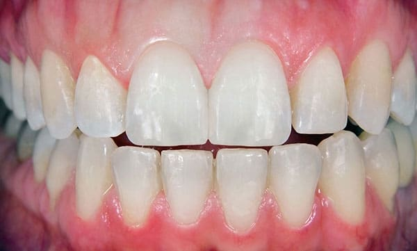 After Tooth Repair