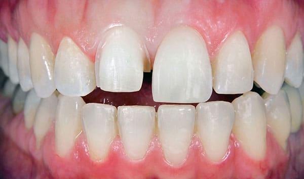 Before Tooth Repair